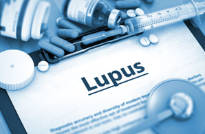 Drug lead for lupus